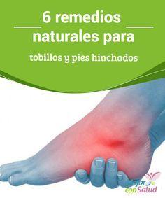 6 remedios naturales para tobillos y pies hinchados  Tener los tobillos y pies hinchados es algo bastante frecuente, sobre todo en las mujeres y en las personas mayores.