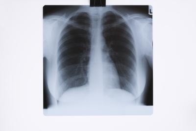 Radiologic techs can make anywhere from $44,000 to about $65,000 a year. Salary depends upon who has employed you and how much experience you have in the field.   http://work.chron.com/much-money-radiologic-technician-make-4036.html