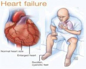 Selamat datang di website jelly gamat terbaik, pada kesempatan kali ini kami akan memberikan informasi mengenai patofisiologi penyakit gagal jantung.