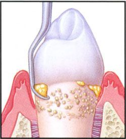 Root planing is done to make the tooth surfaces smoother to overcome rough surface areas that are more prone to stick plaque.