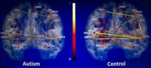Brain scans may aid in diagnosis of autism
