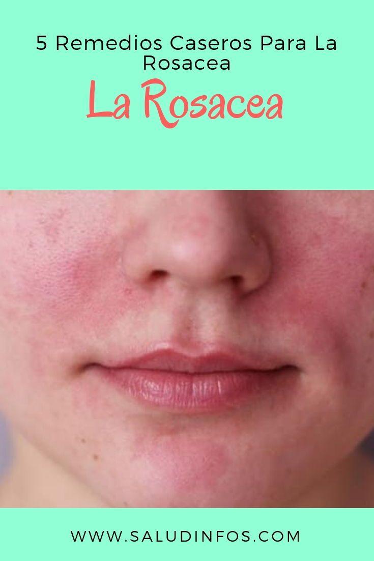 5 Remedios Caseros Para La Rosacea Remedios Rosacea Rosacia