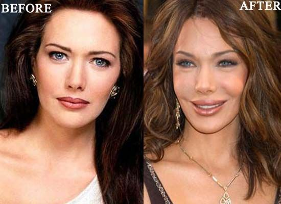17 Celebrities Who Took Plastic Surgery to the Extreme 21 - https://www.facebook.com/diplyofficial