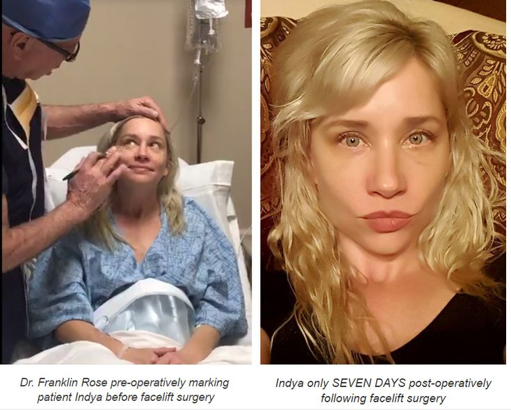 Tune into ABC Eyewitness News on Channel 13 on Monday, April 10 at 10pm to see Indya's BIG REVEAL following her Growth-Factor enhanced facelift by Dr. Franklin Rose with Gina Gaston! Before & after houston facelift photo (courtesy of facebook)