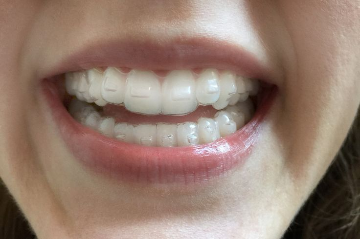 11 Things I Wish I'd Known Before I Got Invisalign | Health News / Tips & Trends / Celebrity Health http://www.thedaviedentist.com/home