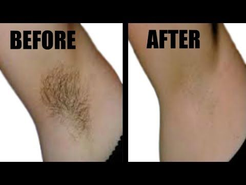 How To Get Rid Of Underarm Hair Permanently Naturally