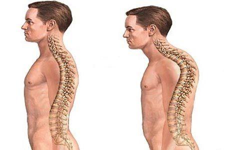 Болезнь Бехтерева имеет международное название - анкилозирующий спондилоартрит. Симтомы недуга, причины появления, лечение и профилактика