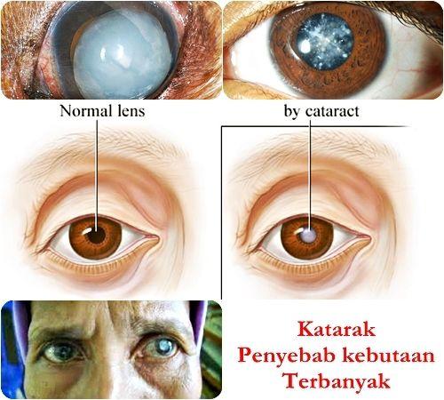 cara mengobati katarak + cara mengobati katarak tanpa operasi + pengobatan katarak secara alami + obat katarak + herbal walatra sehat mata