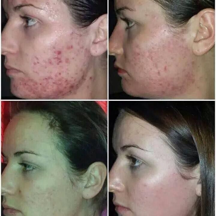 Get that New Year's Glow by restoring your skin's natural brilliance by detoxifying deep within the cells. As the first step in the LUMINESCE™ skincare system, this cleanser conditions and purifies at microscopic levels. Ingredients are carefully formulated to maintain the nutrients and moisture needed to support cell renewal.     LUMINESCE™ youth restoring cleanser http://ambitiouswoman.jeunesseglobal.com/