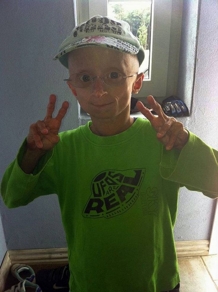 term paper on progeria Progeria is a rare, fatal, genetic condition that comes from the greek word progeros meaning prematurely old in the greek language, the word 'pro' means before and the word 'geras' means old age.