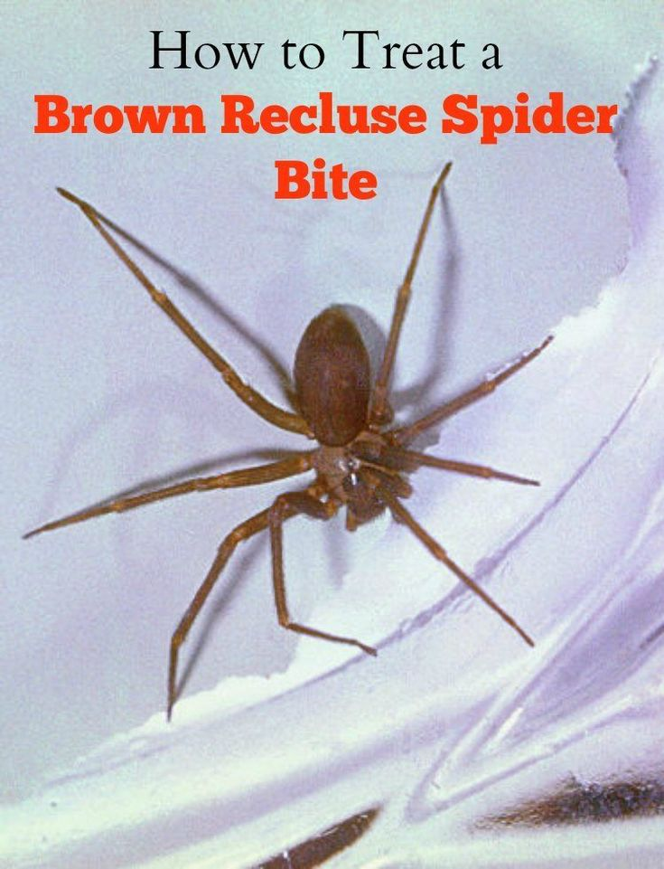 25+ best ideas about Spider bites on Pinterest | Insect ...