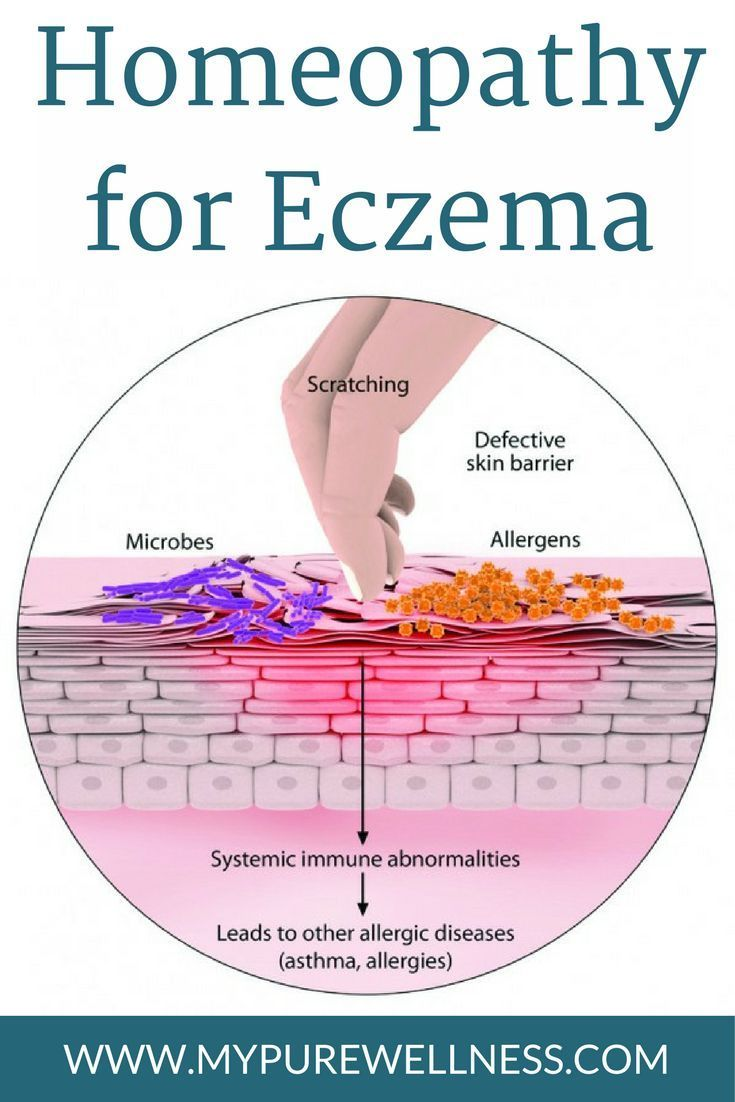 Best 25 Eczema Pictures Ideas On Pinterest Remedies For
