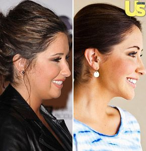Bristol Palin. Chin implant and neck liposuction. Looks so much thinner!!!