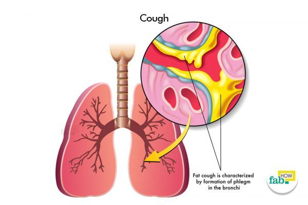 How to Stop Coughing Fast without Medicine
