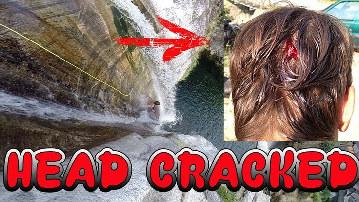 Cliff Jumping GoPro - Natural Slides - Adventures - FAILS (Head Injury)
