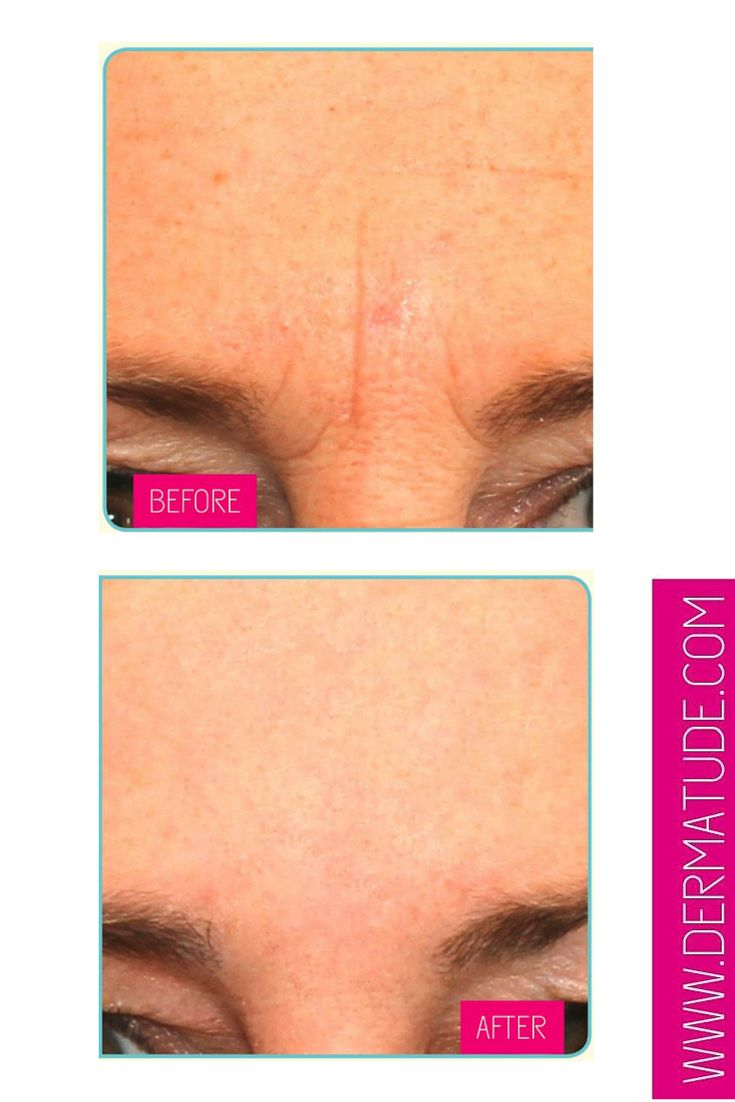 #Dermatude Before and After - Forehead