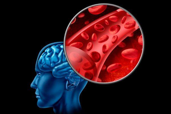 Demencia vascular: causas, síntomas y tratamientos. La demencia vascular explicada para todos.