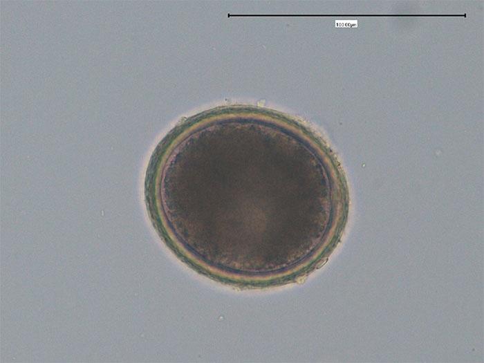 Vídeo sobre parasitas em um corpo
