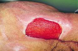 Pressure ulcer | definition of pressure ulcer by Medical dictionary