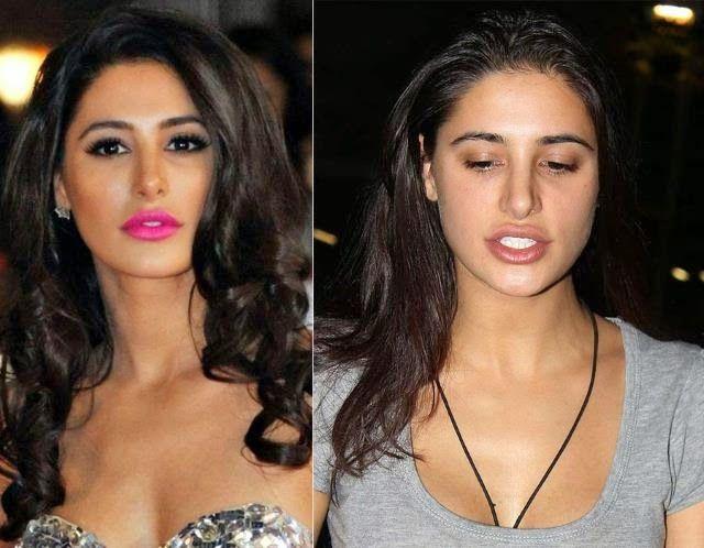 nargis fakhri lip job before and after - ✿⊱╮