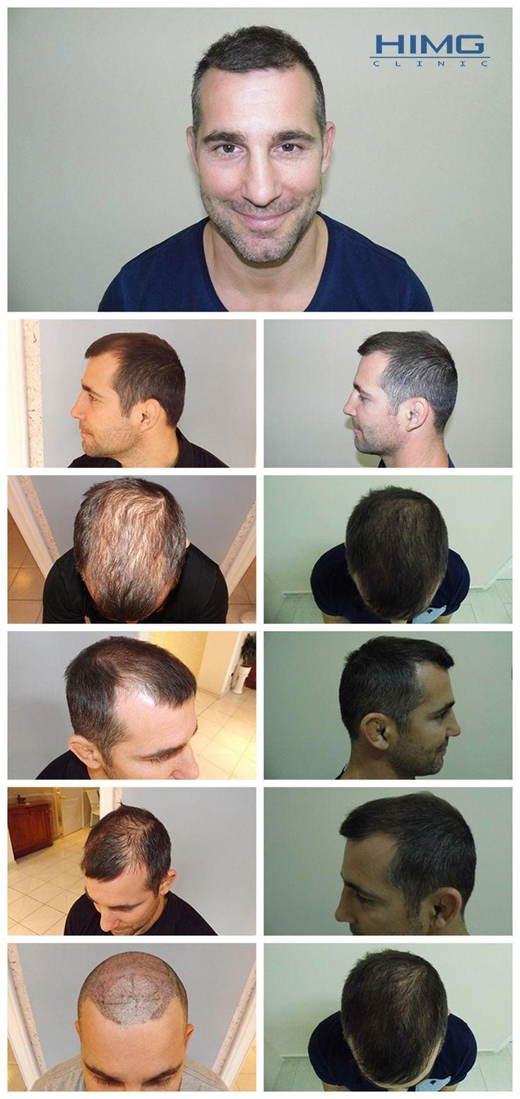 Haare transplantieren ungarn