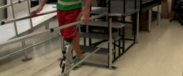 brain controlled artificial legs A mind-controlled prosthetic arm could revolutionize movement for  part of the  limb, and nerve reassignment surgery then allows brain signals.