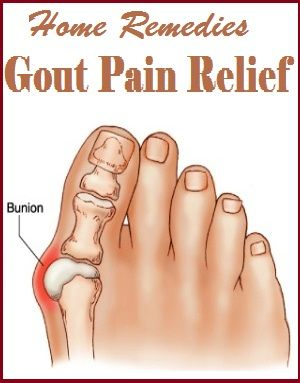 does black cherry juice help gout cure for gout big toe