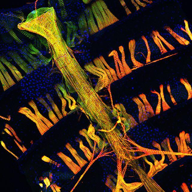 Fruit Fly Heart - Drosophila pumps blood through its body with a long, tube-shaped muscle.  Jianbo Na and Ross Cagan, Mount Sinai School of Medicine, PLOS Genetics, doi:10.1371/journal.pgen.1003175