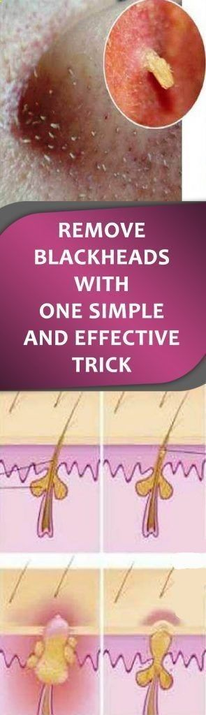 Take away Blackheads With One Easy And Efficient Trick