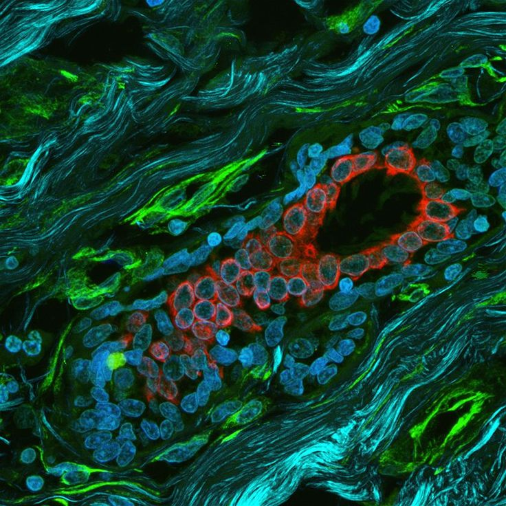 The red area is a milk duct surrounded by connective tissue in a biopsy from a patient with breast cancer. Connective tissue cells are green and collagen fibres are turquoise. Confocal microscopy and second harmonic generation by Arthur Chien, Ellie Kable and Dr Lilian Soon, University of Sydney. (Australian Microscopy and Microanalysis Research Facility)