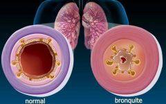 Os 20 Remédios Caseiros Para Tratar Bronquite