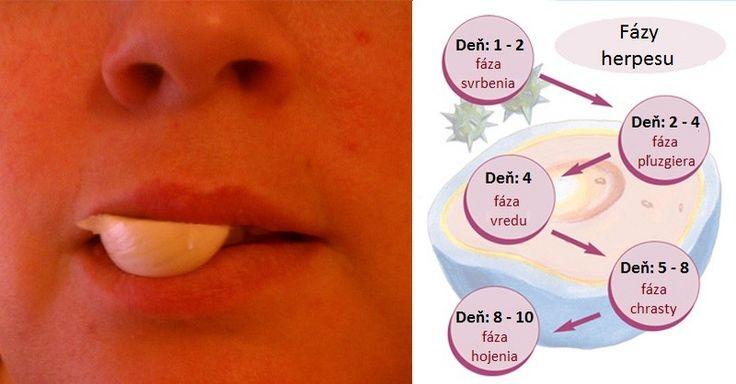 Ako rýchlo vyliečiť herpes či opar na perách: 12 skvelých receptov | Domáca Medicína