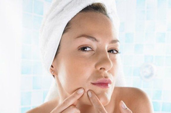 Cystic Acne Treatment - 3 Easy Tips on Acne Prevention and Removal (Read This) * Read more details by clicking on the image.