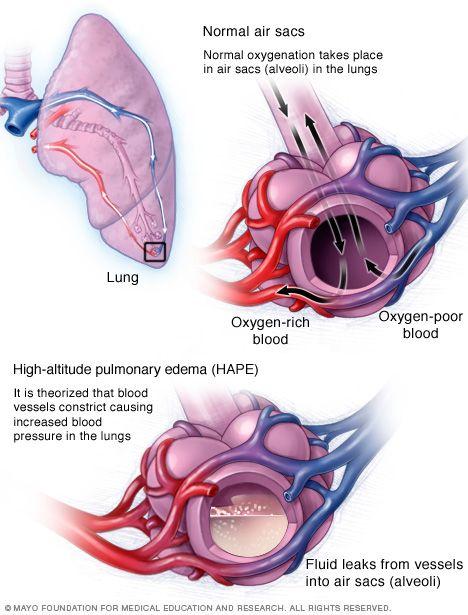 Illustration showing high-altitude pulmonary edema