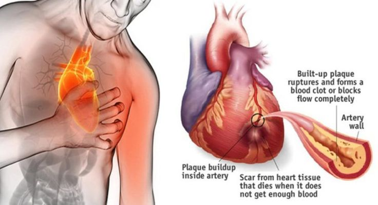 Here's How To Stop A Heart Attack In 60 Seconds, You Must React Fast | HEALTHY FOOD ADVICE