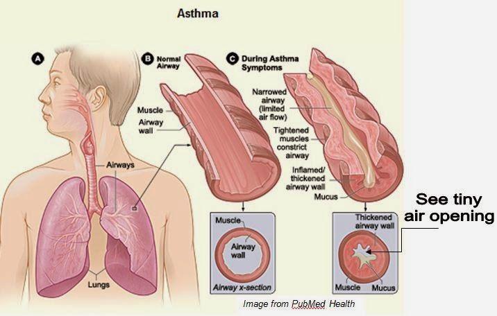 Obat penyakit asma yang alami yang bisa menyembuhkan penyakit asma yang anda derita. (seperti penggunaan jahe, apel, dan ramuan-ramuan tradisional yang alami yang tidak menimbulkan effek bagi anda semua)