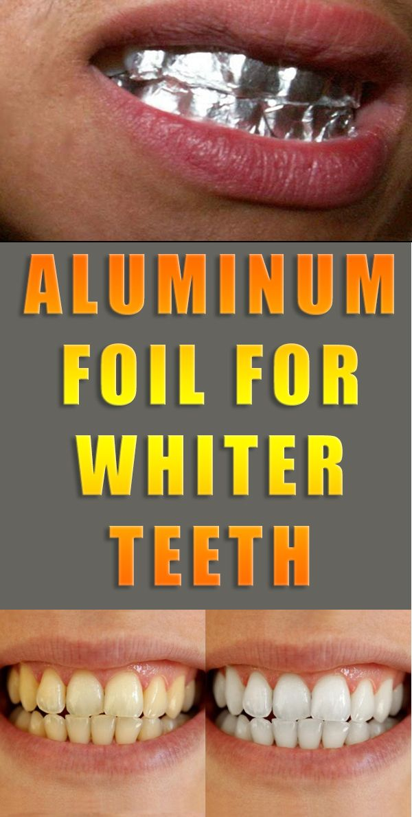 To Whiten Your Teeth At Home All That You Need Are Two Small Pieces