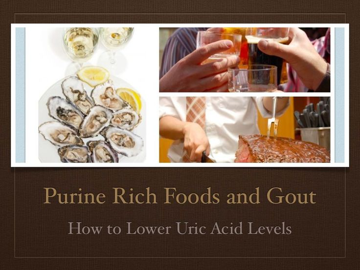 food for high uric acid consequence of high uric acid sore foot after gout attack