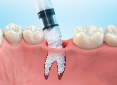 """ABOUT BONE GRAFTING. """"Over a period of time, the jaw bone associated with missing teeth atrophies and is reabsorbed. With bone grafting we now have the opportunity to not only replace bone where it is missing, but...to promote new bone growth in that location."""" Nottingham Oral Surgery"""