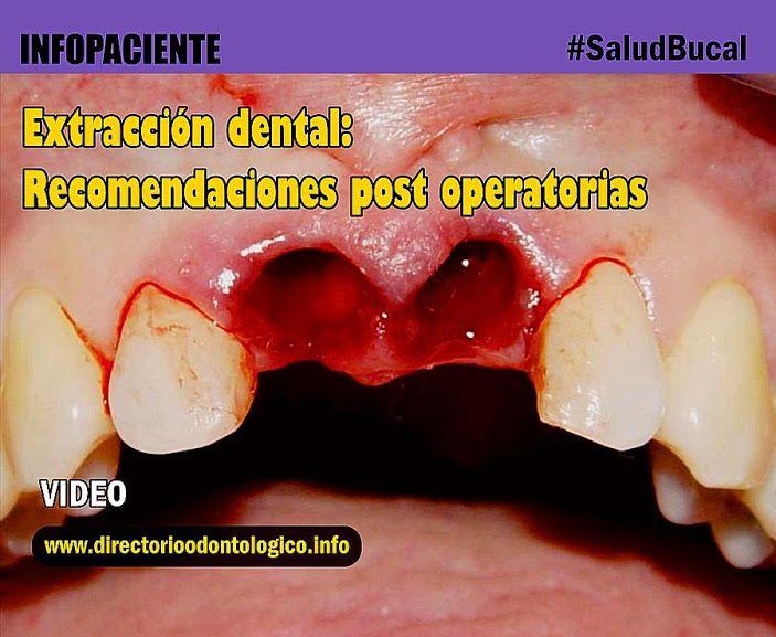 extraccion-dental-cuidados