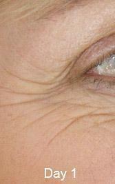 Total Wrinkle Miracle