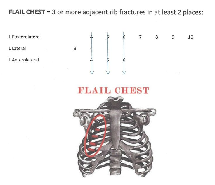 Flail Chest - life-threatening medical condition that occurs when a segment of the rib cage breaks under extreme stress and becomes detached from the rest of the chest wall. It occurs when multiple adjacent ribs are broken in multiple places, separating a segment, so a part of the chest wall moves independently.