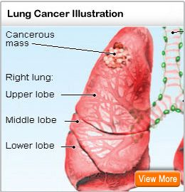 Cancer illustration