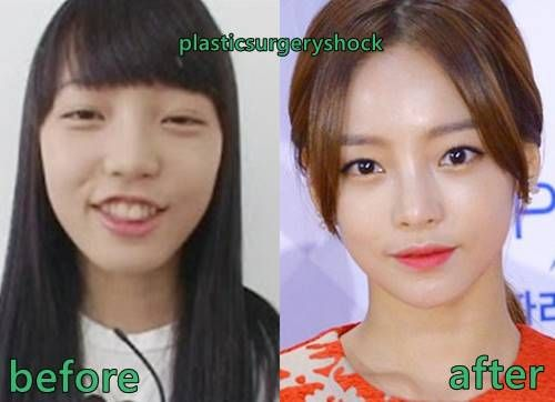 Goo Hara Plastic Surgery Before and After