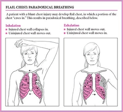 Flail Chest: Paradoxical Breathing. Monitor vital signs for shock, administer pain meds at reg intervals, encourage client to turn, cough & deep breathe, monitor ABGs