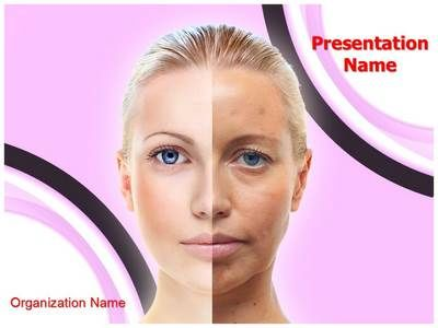 Epidermal Hyperpigmentation between ugliness and beauty