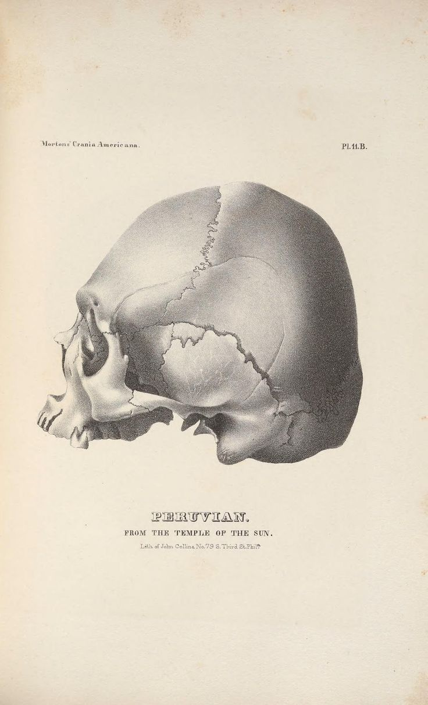 244 best Bone images on Pinterest | Bones, Skulls and Human anatomy