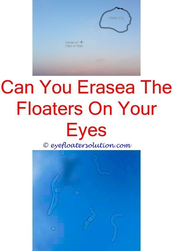 can dry eye syndrome cause floaters - low blood pressure and