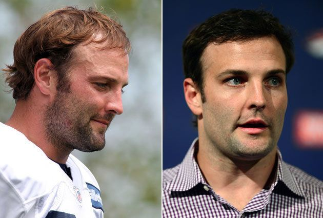Wes Welker Before Left And After Right His Hair Transplant Usa