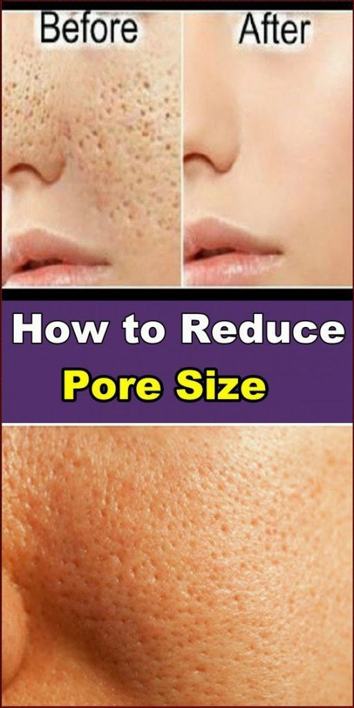 Large pores can be quite upsetting. They make your…